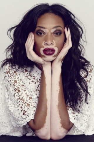 Winnie Harlow height and weight 2016